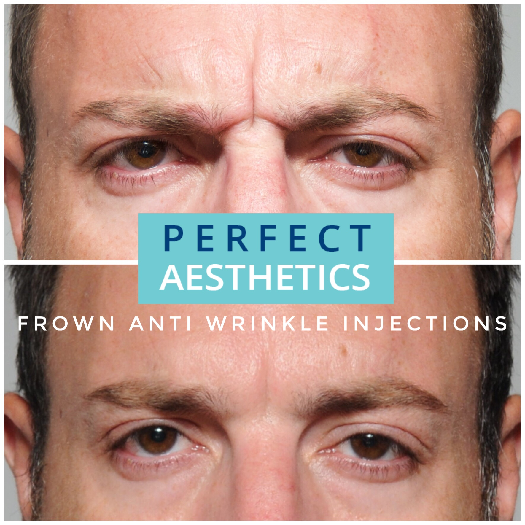 Perfect 32 | Botox, Lip and Dermal Fillers in Beverley,Hull and