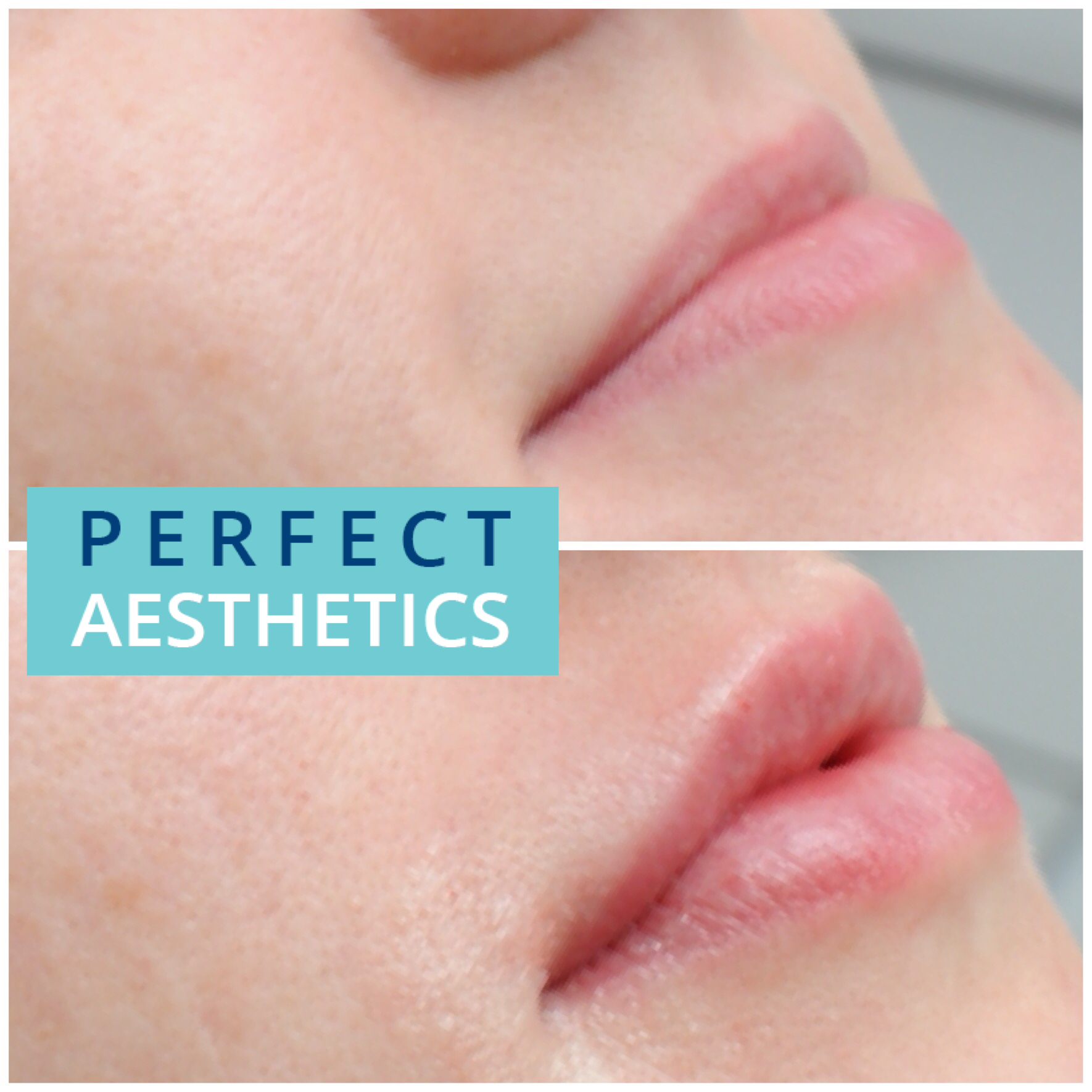 Perfect 32 | Botox, Lip and Dermal Fillers in Beverley,Hull